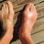 Penyakit Asam Urat: Kenali Gejala, Penyebab dan Tips Pencegahannya